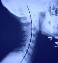 正常颈椎生理曲度